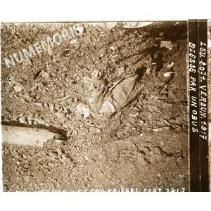PV 2071 verdun 1917 blesse par un obus BBC